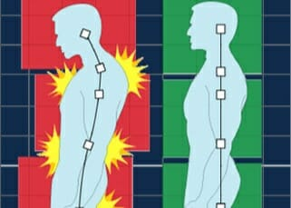 NYTimes: Lower Back Ache? Be Active and Wait It Out, New Guidelines Say